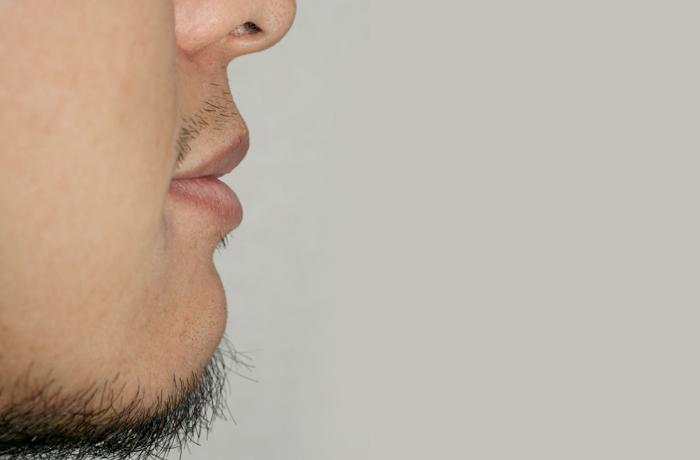 反対咬合・下顎前突 治療後 横顔
