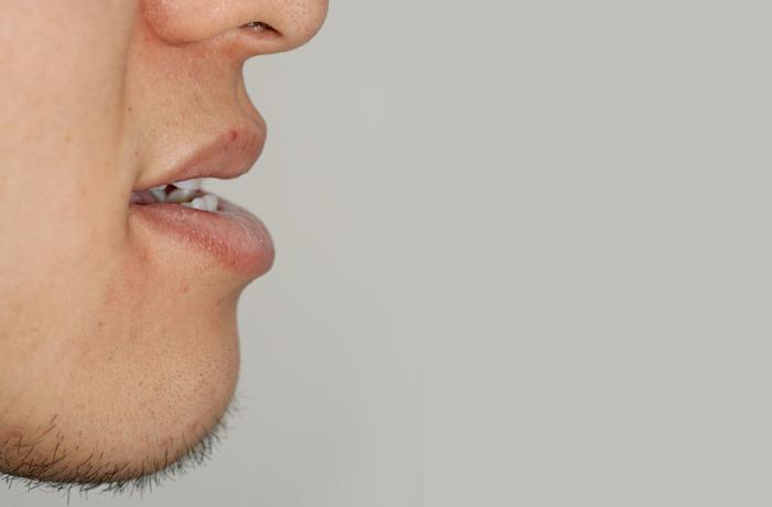 反対咬合・下顎前突 治療前 横顔