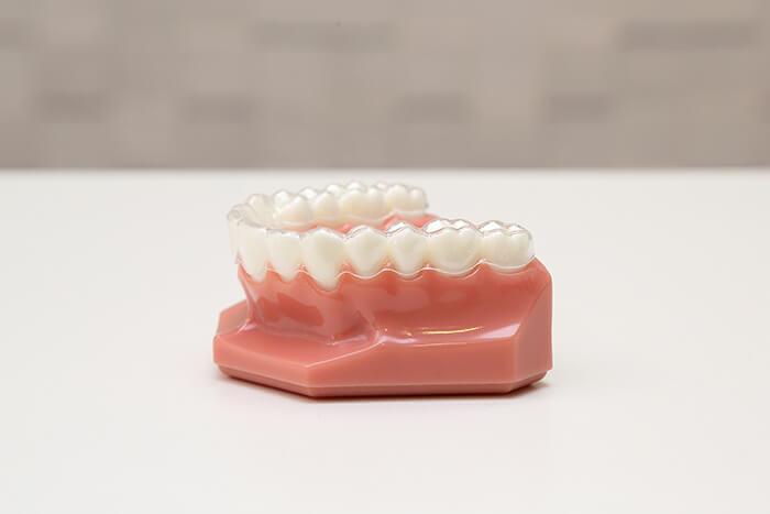 マウスピース型矯正歯科装置(インビザライン)のメリットとデメリット
